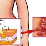 Hogyan tüntessük el a HPV vírus okozta szemölcsöket testünkről.