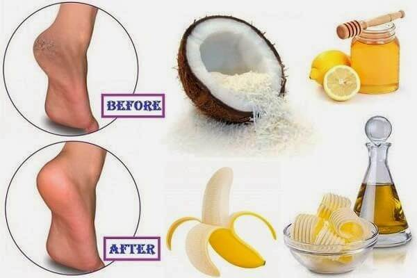 Cracked Heels Remedies Prevention Tips And Care At Home