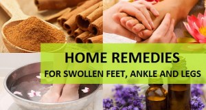 Home Remedies for Swollen Feet, Ankle and Legs