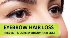 How to prevnet and cure eyebrow hair loss