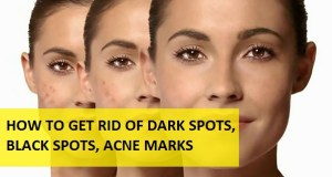 home remedies for dark spots and black spots on face