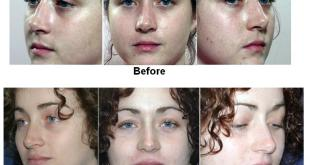 Rhinoplasty in Mexico
