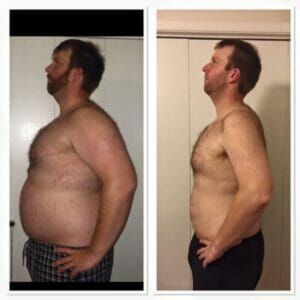 before-and-after-keto