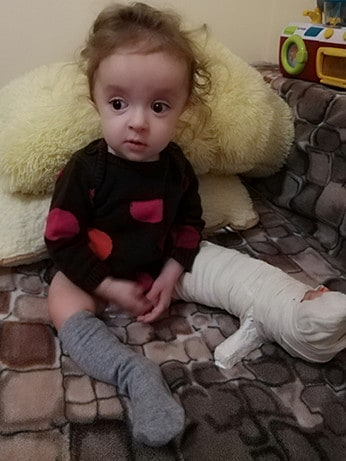 Maleńka istota, ogromny ból – walka Laury z wrodzoną łamliwością kości