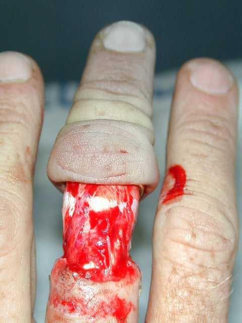 Dedo despellejado por culpa de un dichoso anillo.