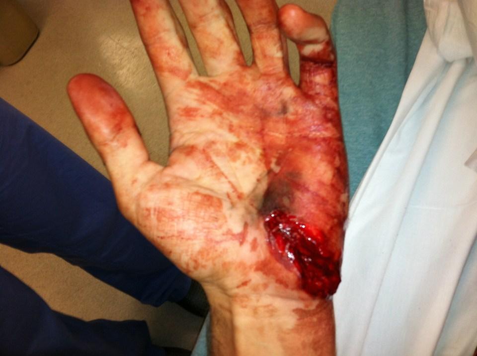 Descarga negligente sobre la palma de la mano de un proyectil de punta hueca blindada Remington Golden Saber HPJ de 165 grains (10'7 gramos).