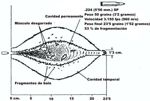 Imagen 8: La construcción con punta hueca de este proyectil en calibre .22 hace que se fragmente durante los primeros 10 cm. de penetración en los tejidos. La debilitación de los tejidos producida por los múltiples fragmentos de bala interacciona con el estiramiento de la cavidad temporal para provocar una mayor destrucción permanente de tejidos.