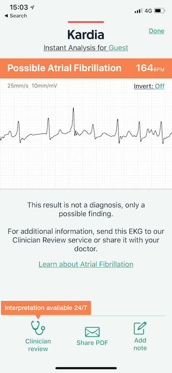 TitaniumGeek IMG 1237 AliveCor Kardia Mobile ECG Review Gear Reviews Medical Journals Sports Articles  medicine heart Cardiac atrial fibrillation   Image of IMG 1237