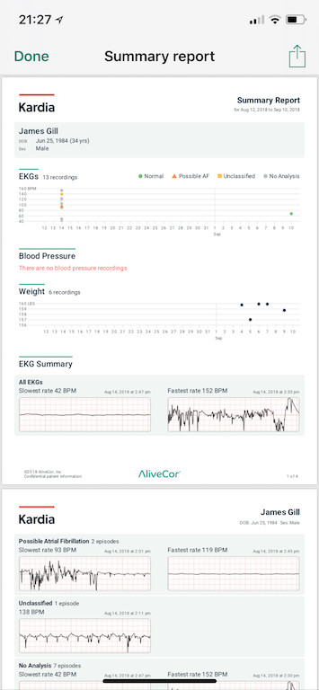 TitaniumGeek IMG D7BBF2482FCD 1 AliveCor Kardia Mobile ECG Review Gear Reviews Medical Journals Sports Articles  medicine heart Cardiac atrial fibrillation   Image of IMG D7BBF2482FCD 1