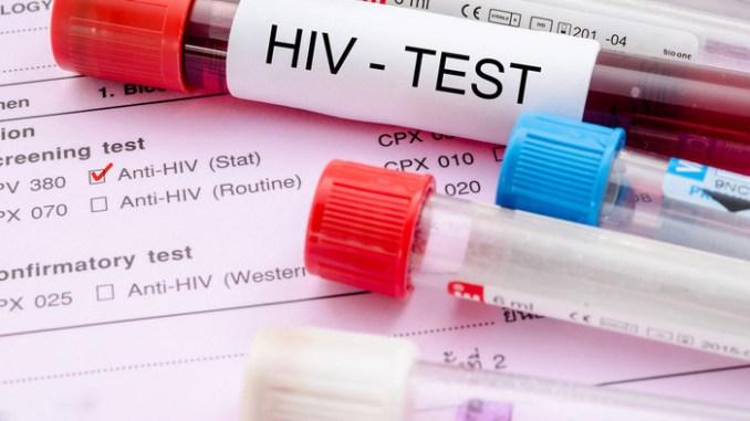 спосіб виявлення ВІЛ
