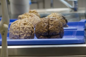 Electrically Stimulated Laughter may up Brain Surgery Success Outcome