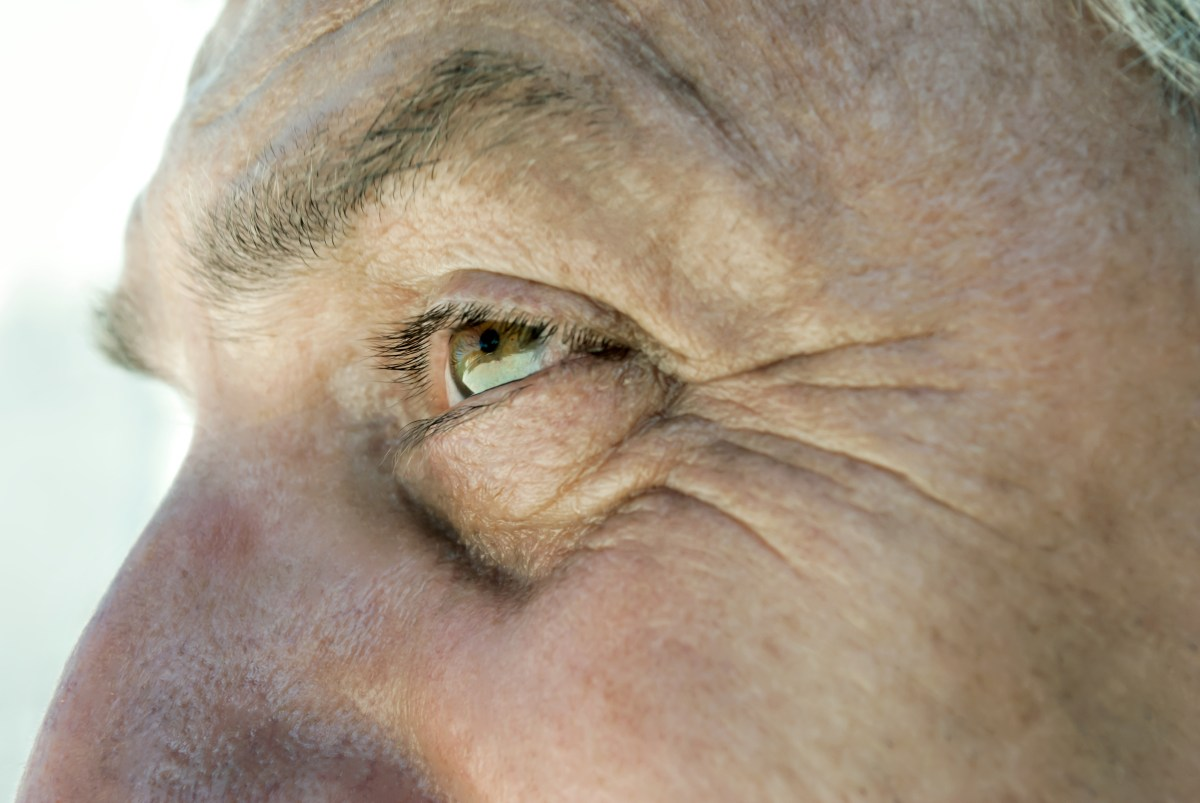 New Line of Measures for the Treatment of Actinic Keratosis to Accelerate Development of Global Actinic Keratosis Treatment Market