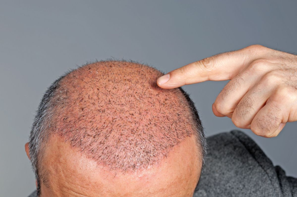 Service Providers in Hair Transplant Market Focus on Affordability