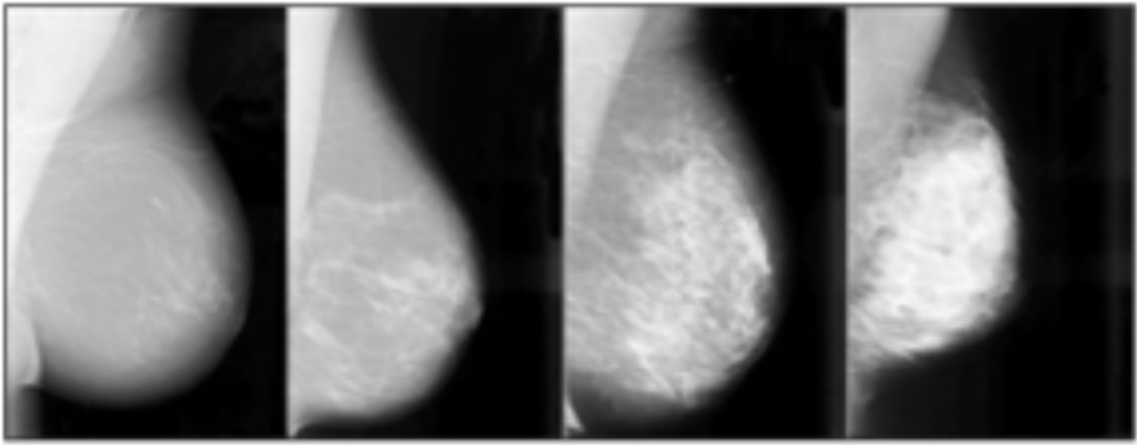 dense breast tissue radiographic imaging scan