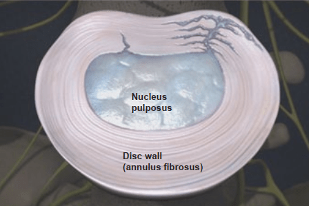 nucleus pulposus and disc wall with tears