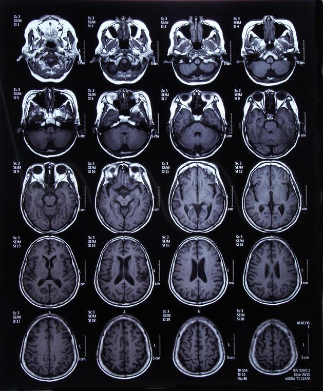 Cara Mengobati Kanker Otak Aman dan Efektif