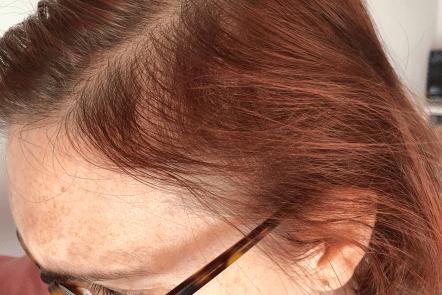 Hair loss caused by telogen effluvium