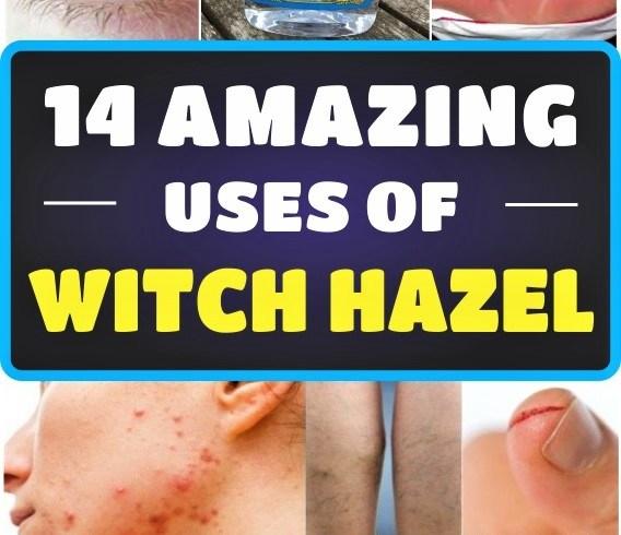 14-amazing-uses-of-witch-hazel