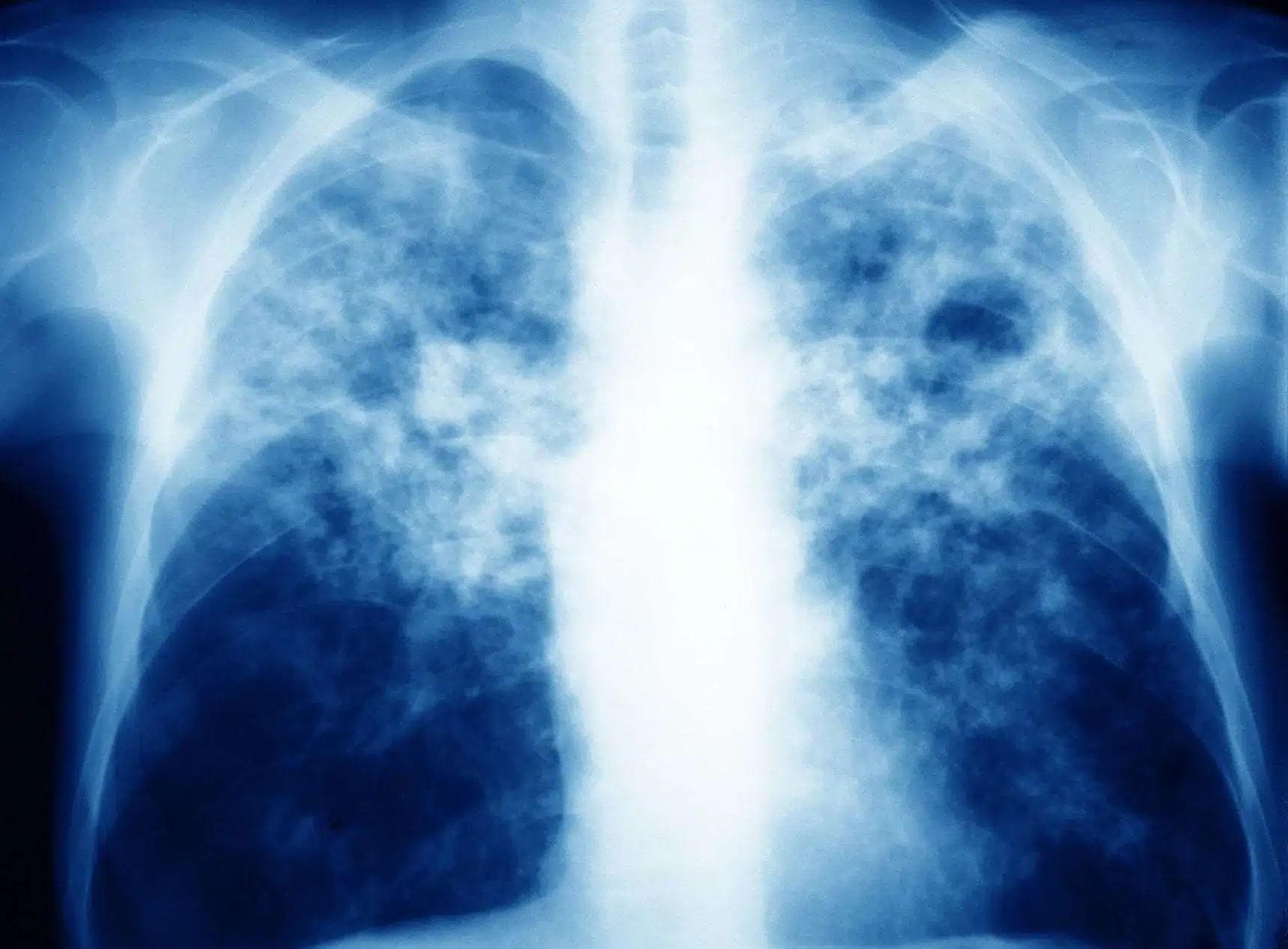 Tuberculosis-1720x1267