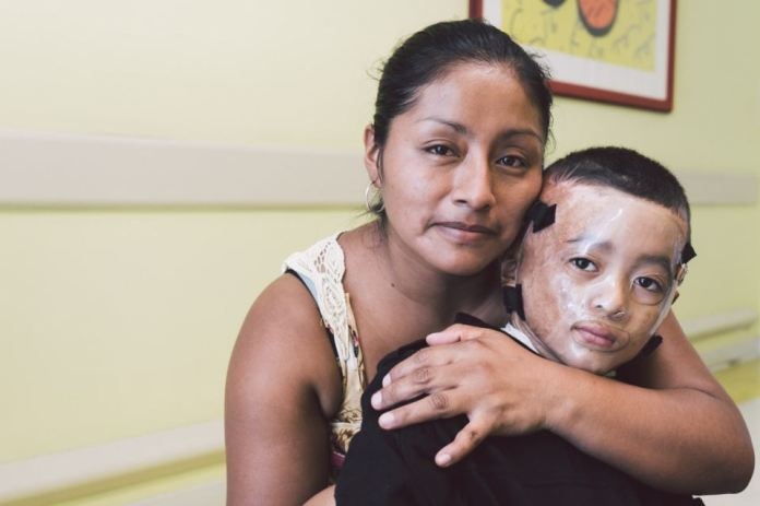 A child burn victim and his mother recover at APROQUEN. Courtesy: April and Gabriel Flores of Native Kind