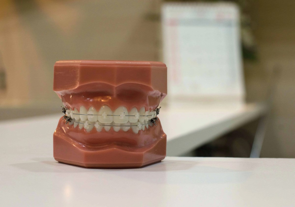 How to Effectively Prepare For Invisalign