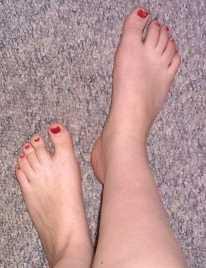 Elimina ese mal olor de pies Dermatología