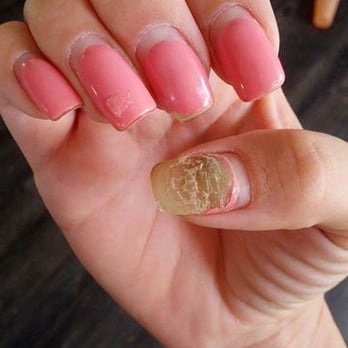 7 Tips To Treat Nail Fungus Caused By Acrylic Nails