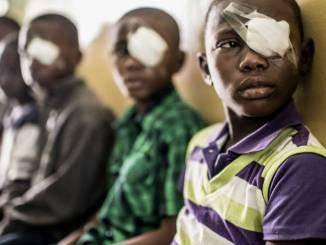 scidev2 Les patients africains plus susceptibles de mourir d'une intervention chirurgicale