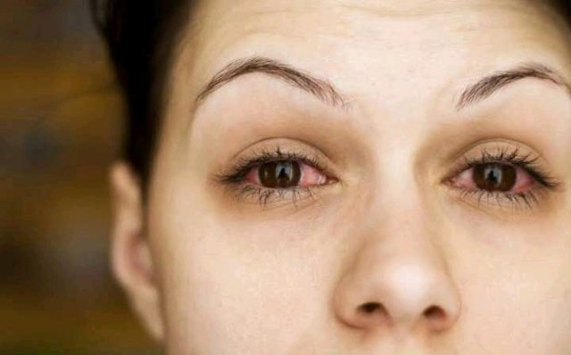 How To Cure Eye Problem Naturally At Home Without Side Effects
