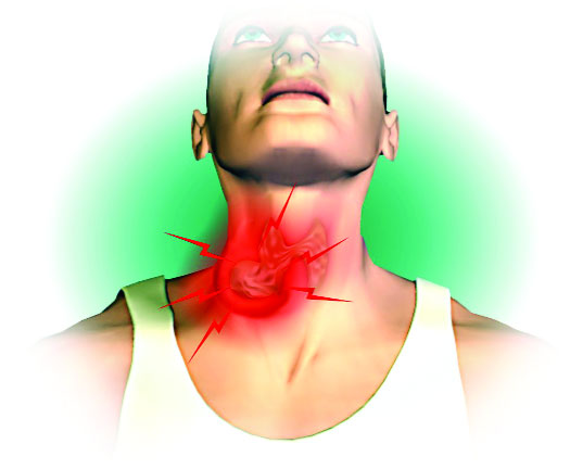 4 Tips to Prevent Throat Cancer, and 15 Tips to Improve Your Health