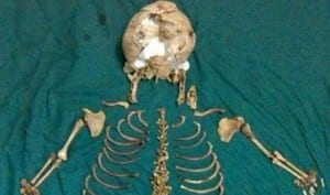 World's Longest Ectopic Pregnancy: India doctors remove foetus left inside mother for 36 years! | India.com
