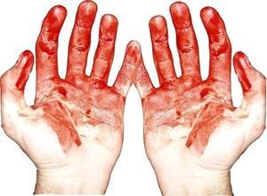 vörös foltok a bőrön gyantázás után távolítsa el a vörös foltokat az arcról népi gyógymódokkal