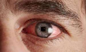 Fyrkantiga ögon