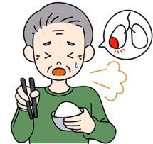 高齢者に多い嚥下性肺炎【ほづ医院 保津真一郎(内科医師)】(182号)