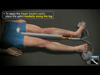 medrills fracture