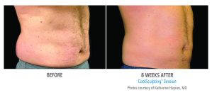 Male Abdomen Before & After