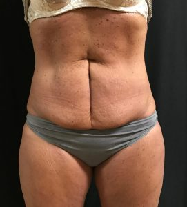 Coolsculpting Before Photo