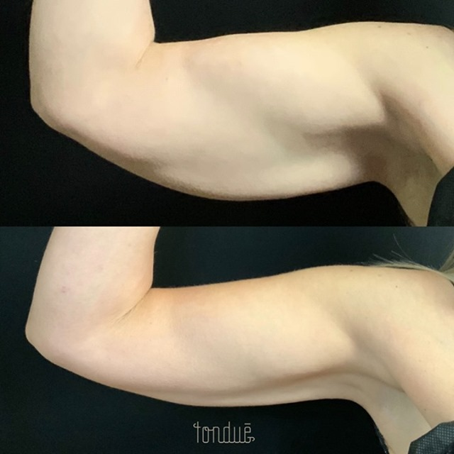 Coolsculpting Arns Before & After