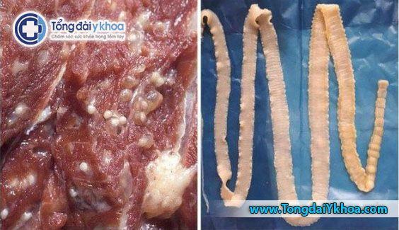 sán lợn sán dây có nguy hiểm không lợn gạo sán dải