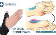 Hội chứng De Quervain là gì ?