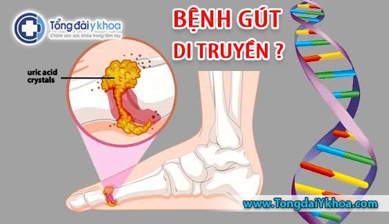 benh gout benh gut co di truyen khong Genetic gout