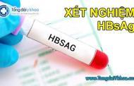 Một số điều về xét nghiệm HBsAg