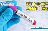 Xét nghiệm Anti HBs là gì ?