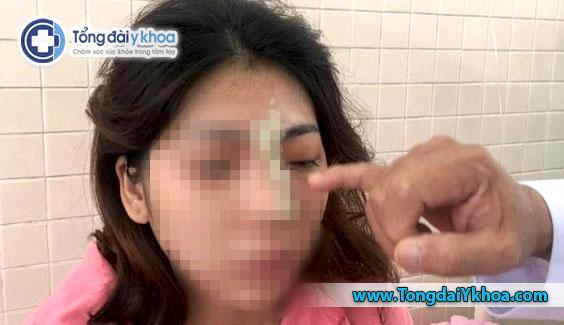 Bình Phước cô gái trẻ bị mù mắt sau khi tiêm filler nâng mũi tại spa