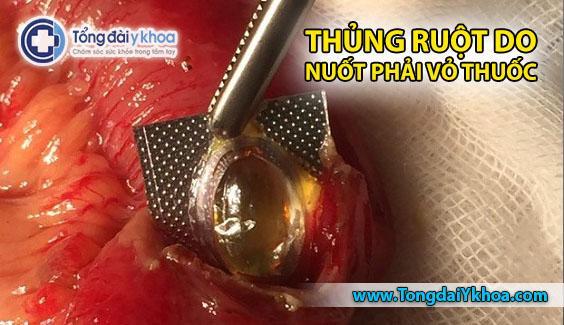 thủng ruột do nuốt vỏ thuốc tin tức y tế sức khỏe