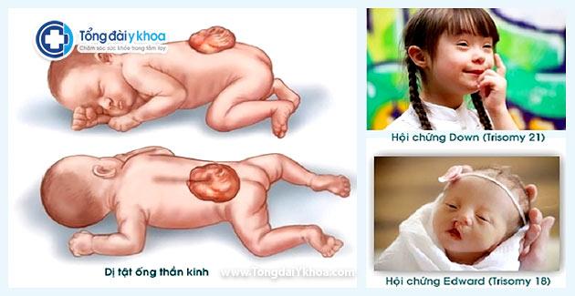 Các dị tật thai nhi