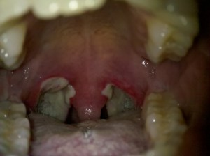 Tonsillectomy Recovery Picture Day 7