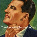 Tonsillectomy Recovery Tips