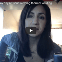 Tonsillectomy recovery video blog