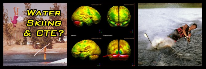 cte and water skiing chronic traumatic encephalopathy